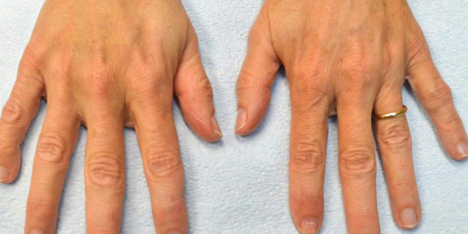MAINTAINING THE BEAUTY OF HANDS
